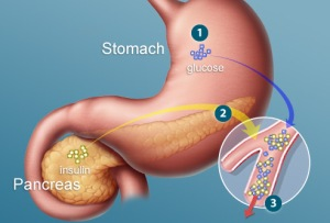 webmd_illustration_of_stomach_and_pancreas